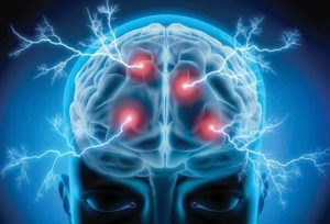 New Test to Quickly Identify Mild Traumatic Brain Injury